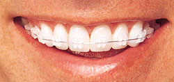 Close up of a smile with their invisalign.