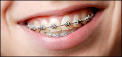 Close up of a smile with braces.